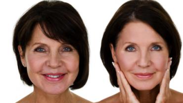 Mitől hatásos és jó egy fókuszált ultrahangos arclifting kezelés?